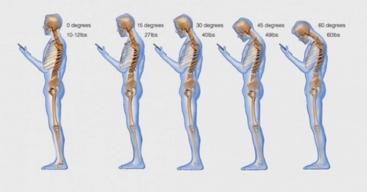 cell-phone-text-messaging-posture-1030x538-2